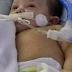Em Ceilândia, bebê aguarda cirurgia no coração há mais dois meses e corre risco de morte