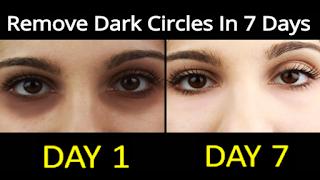 ازالة الهالات السوداء تحت العين في اسبوع