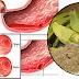 Alivia las úlceras, gastritis y elimina el colesterol con plátano verde