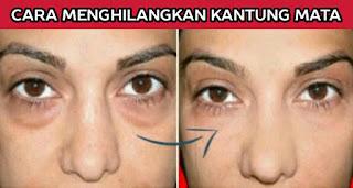 Penyebab Kantung Mata: Bagaimana Menghilangkan Kantung Mata Secara Permanen
