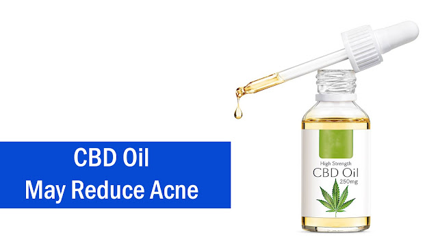 CBD Oil May Reduce Acne
