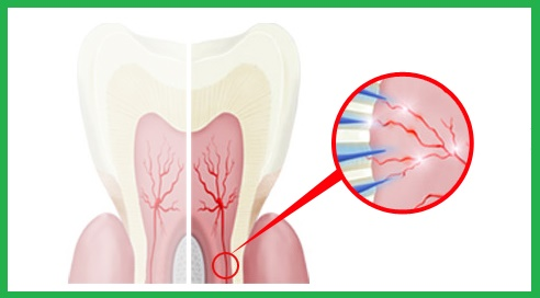 Cara Mengatasi Gigi Sensitif Ngilu Karena Makanan Berlubang