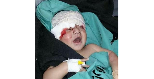 """Menteri Kesehatan Palestina: Dua Orang Gugur, 1.114 Terluka Oleh Tembakan """"Israel"""""""
