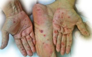 Obat Alergi Kulit Gatal Berair
