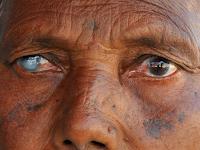 http://infoprodukgreenworld.blogspot.com/2015/08/gejala-dan-penyebab-retinitis-pigmentosa.html