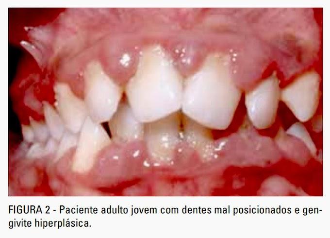 PDF: Relação entre Dentes Mal Posicionados e a condição dos Tecidos Periodontais
