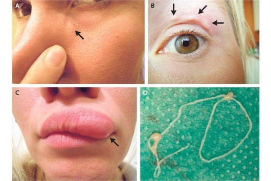 WOMAN'S SELFIES CAPTURE MOVING LUMP ON FACE: A PARASITE