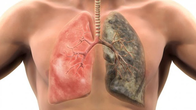Meski Tak Merokok, Kanker Paru Tetap Mengancam Kesehatan Anda! Ini Penyebabnya