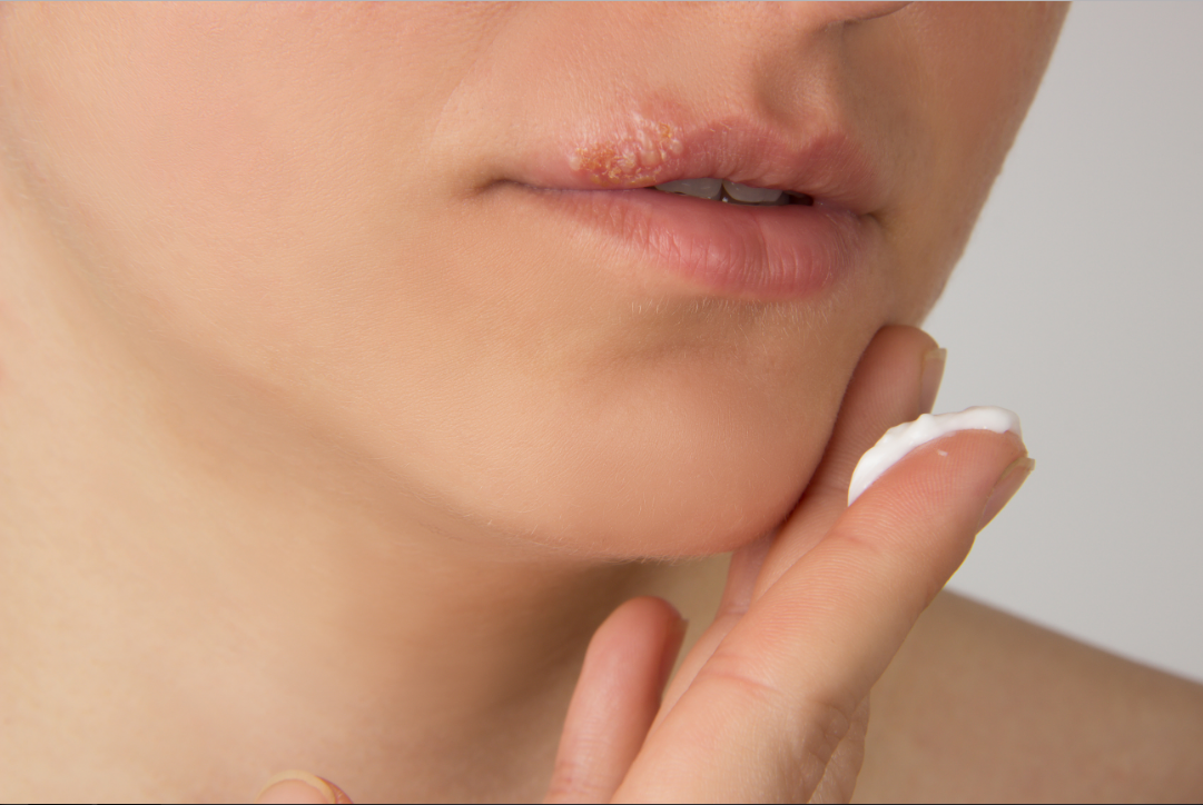 cold sores,cold sore,cold sore treatment,cold,how to treat cold sores,how to get rid of cold sores,sores,treat cold sores,cold sores on lips,how to stop cold sores,
