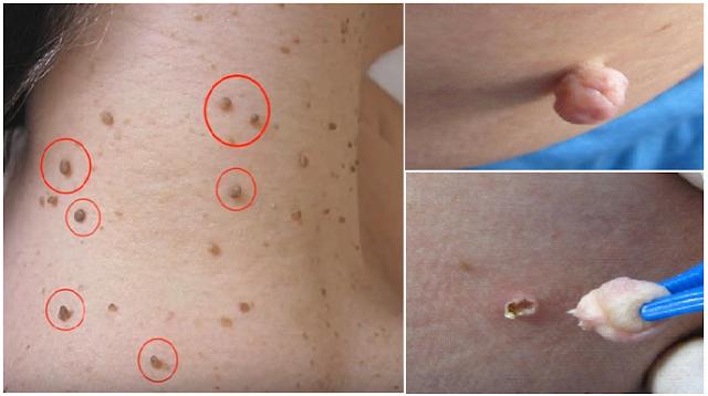 Jangan Panik Jika Tubuhmu Dipenuhi Tumor Fibroid/Kulit Berlebih, Begini Cara Mudah Menghilangkannya