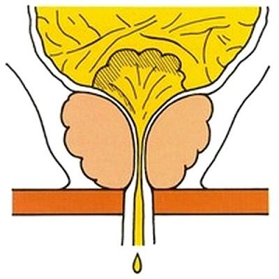 Incontinence par regorgement : rétrécissement de l'urètre