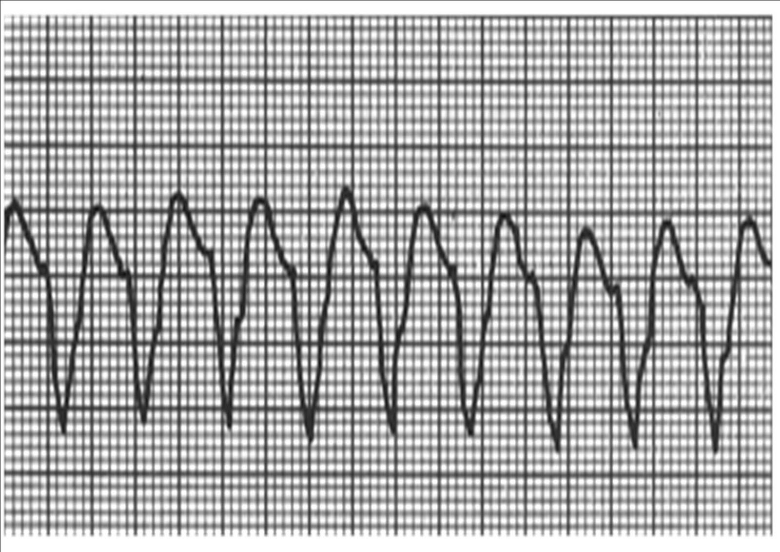 Gambar Segmen St Penyakit Jantung Abufachri Blog Antero