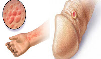 Pengobatan Terbaik Penyakit Sipilis pada Pria secara Alami