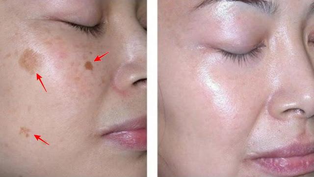 Homemade Facial Masks For Removing Stubborn Dark Spots