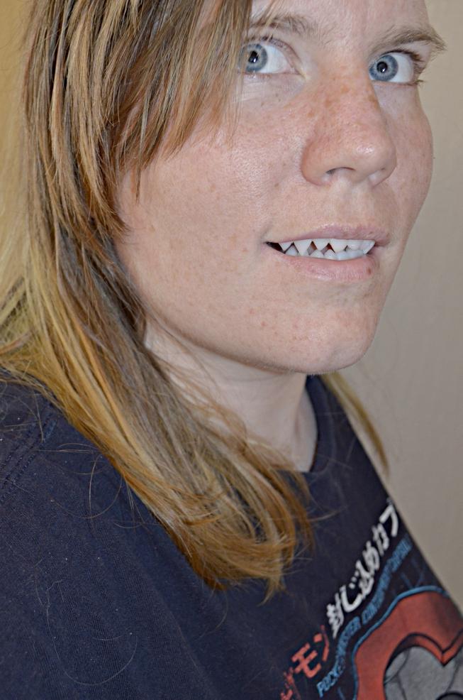A world of creativity: Polymorph Teeth Walkthrough