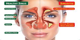 Infeksi Sinus Sembuh Dalam 20 Detik