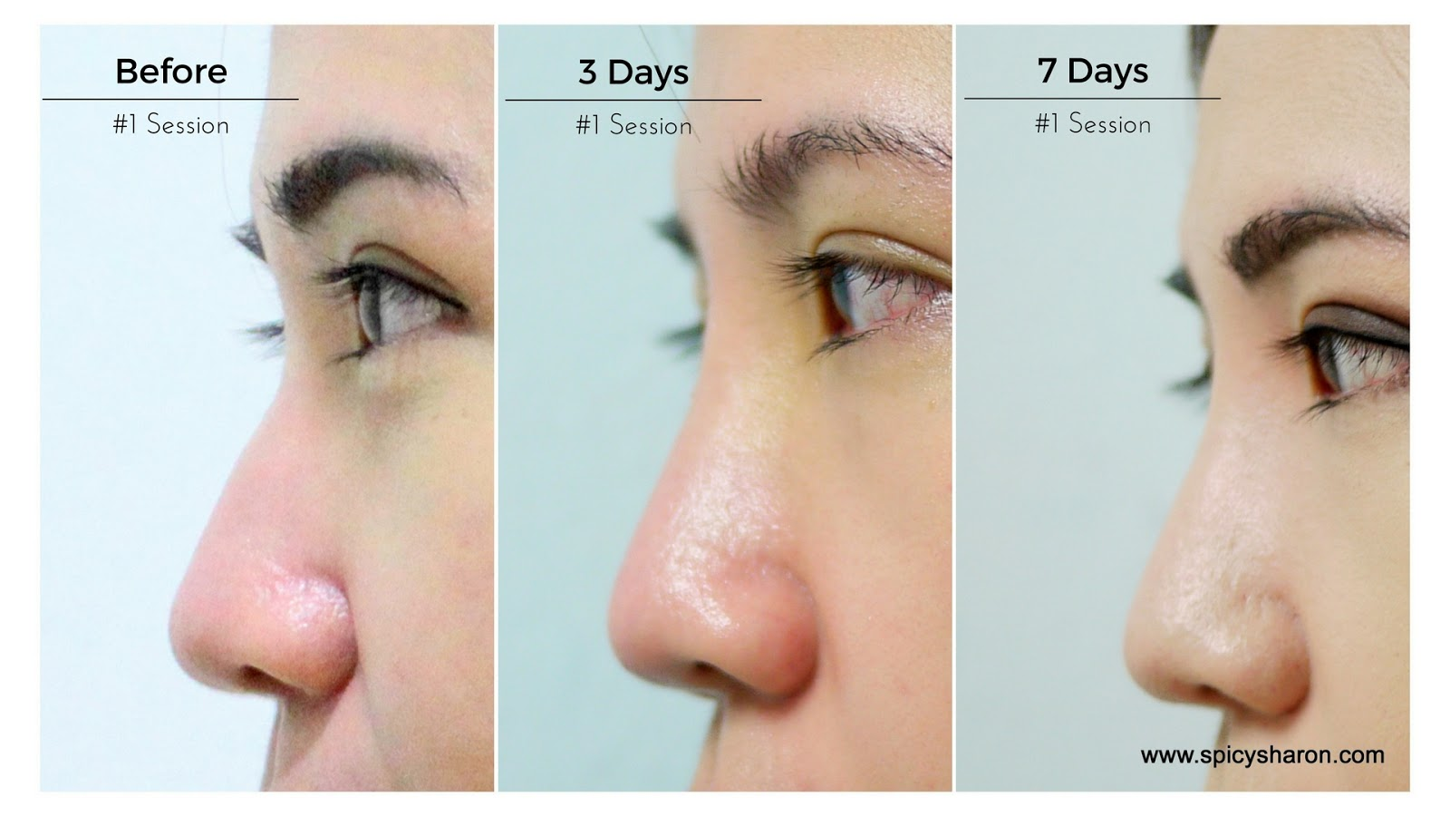 HIKO Nose Lift @ ME Aesthetic Clinic, Time Square KL Review