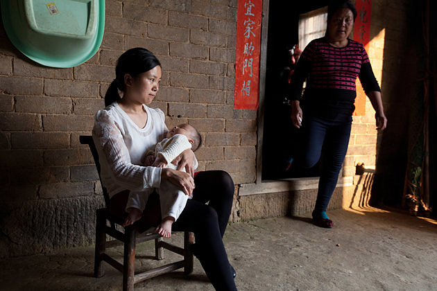 Bebê chinês com Polidactilia