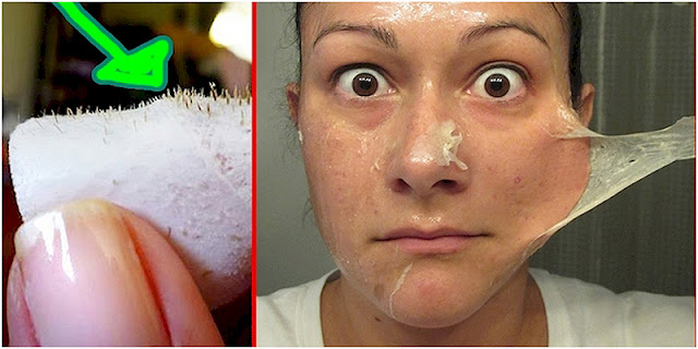 See How This Woman Uses Milk And Gelatin To Remove Blackheads