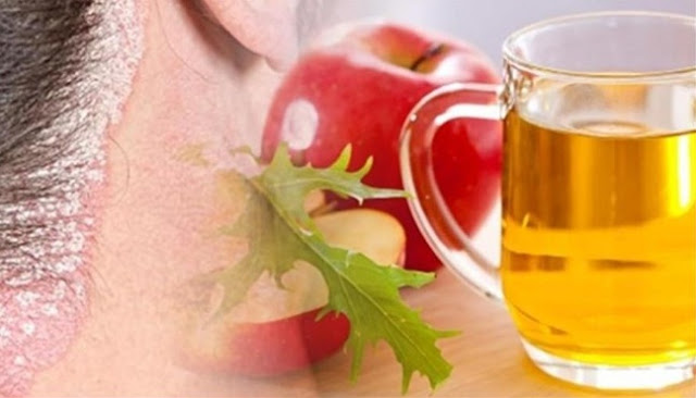 The Benefits of Apple Cider Vinegar to Get Rid of Acne