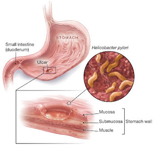Penyakit MAG dapat menyebabkan bau nafas