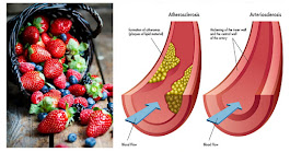 Top 10 Foods To Keep Your Arteries Clean