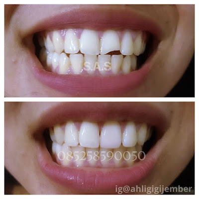 Tambal gigi patah gigi cuil gigi gopel perbaiki gigi cuil patah ahli tambal gigi