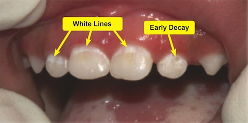 how to stop tooth decay from spreading