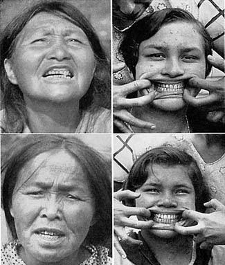 Cherokee Facial Features >> Nourish to Flourish: Meet Dr. Weston A. Price