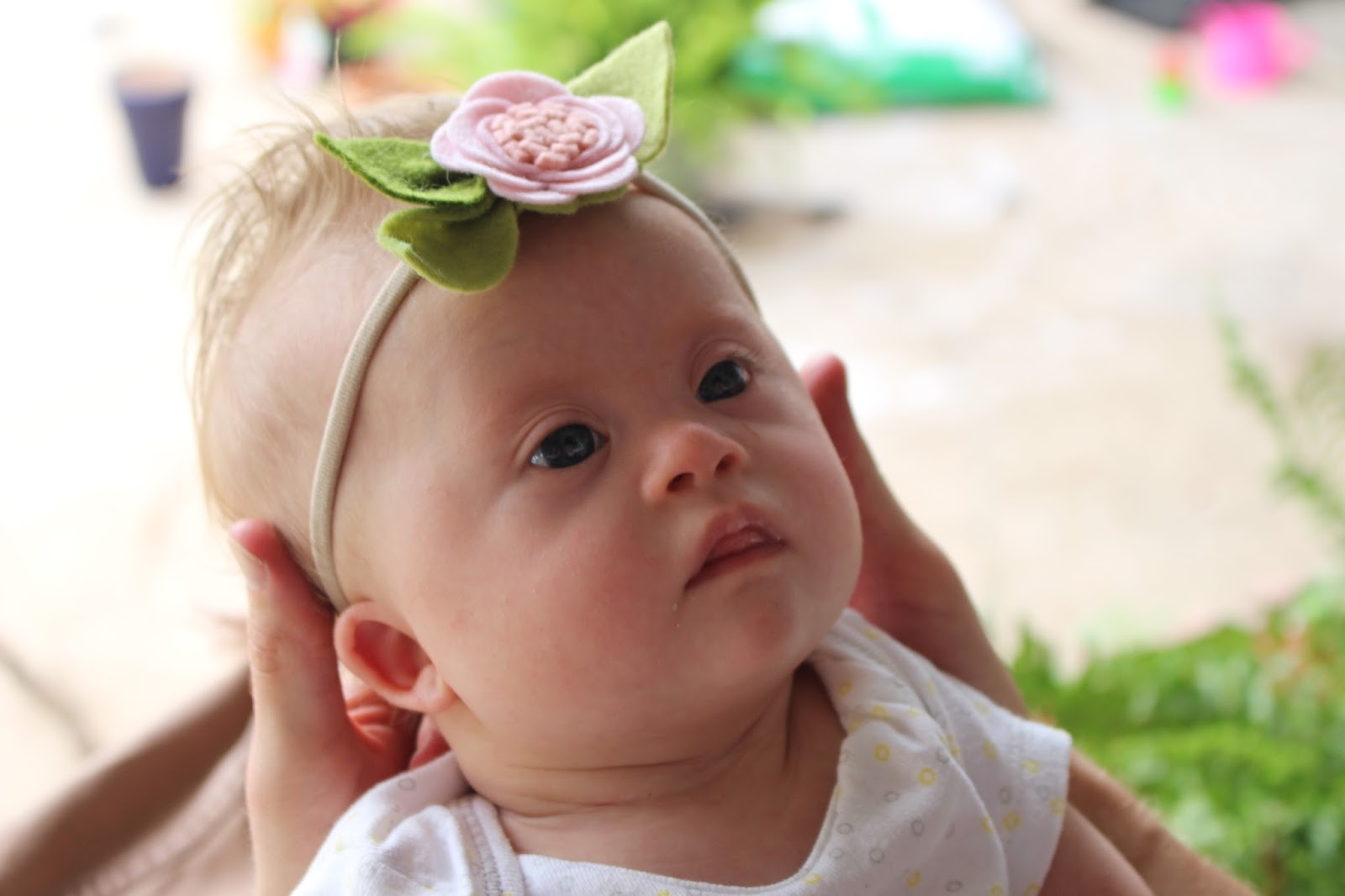 Baby Model Down Syndrome