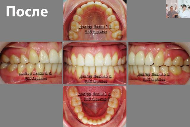 Пять фото зубов характеризующих прикус пациента до лечения