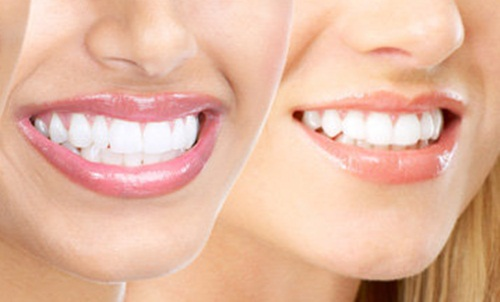 mencegah gigi menguning
