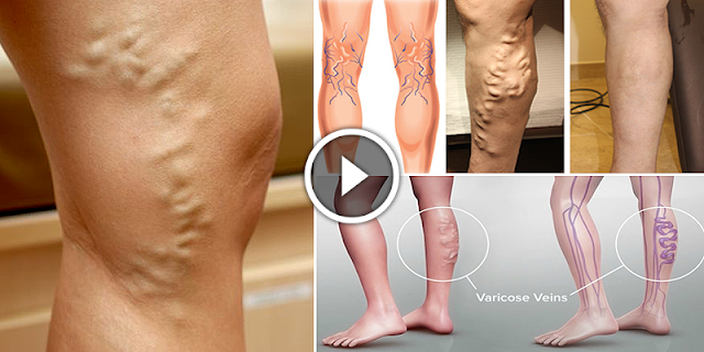 5 Natural Home Remedies To Eliminate Varicose Veins Very Fast