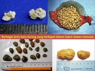 ubat batu karang mujarab