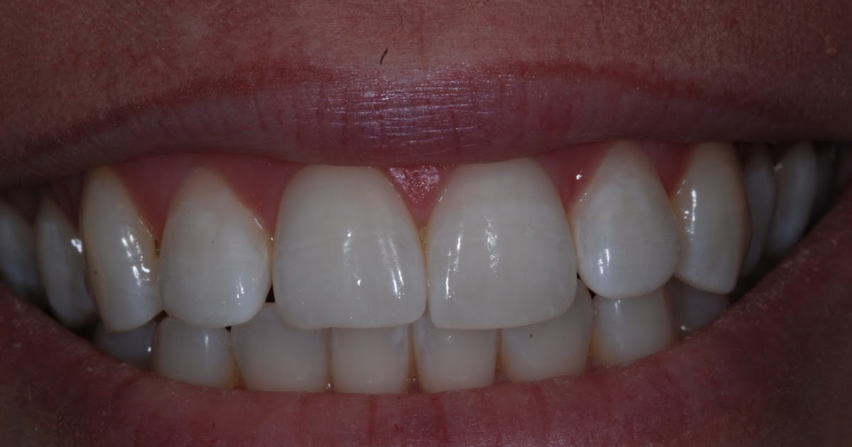 Sciascia Dental Soda Pop Cavities