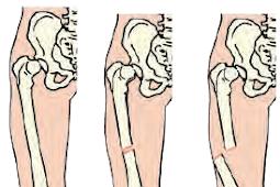 Macam-macam Kelainan pada Organ Gerak Pasif (Tulang)