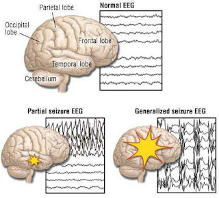EEG normal dan abnormal
