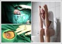 Gejala Penyakit Apa Jika Susah Bab Dan Keluar Darah