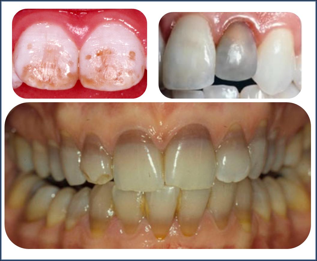 Resultado de imagen de dientes podridos por refrescos