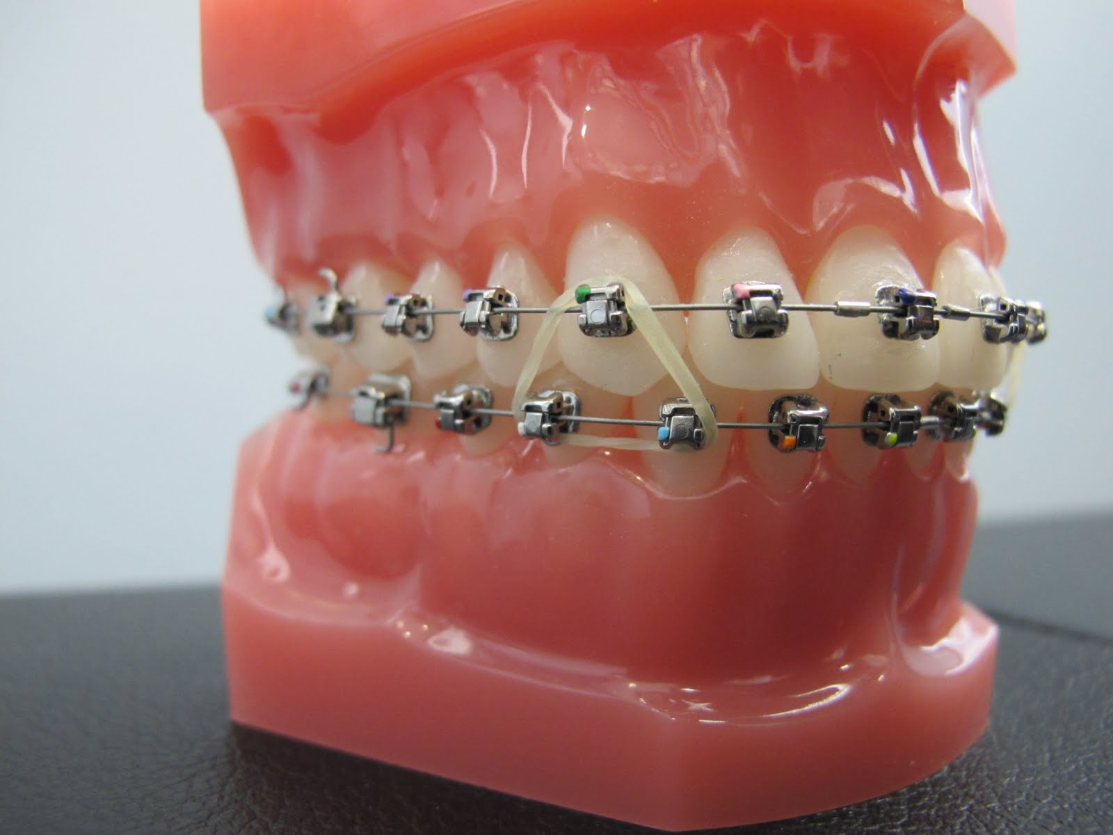 Boschken Orthodontics Why Does Dr Boschken Recommend Wearing Your