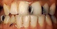 Contoh Gigi Keropos atau Flek Hitam