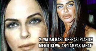 Wajah hasil Operasi Plastik Memiliki wajah 'tampak jahat'