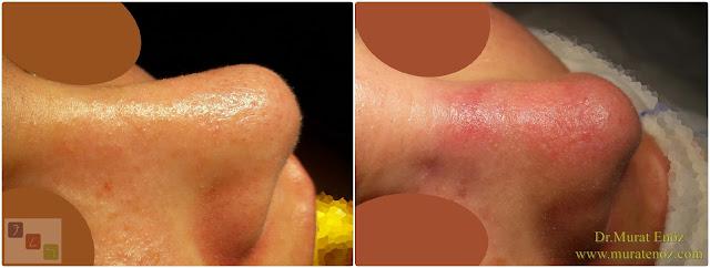 Revizyon burun estetiği ameliyatı - Revizyon rinoplasti ameliyatı - Revizyon estetik burun ameliyatı - Tek taraflı kemik kırma (osteotomi)
