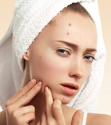 cumin seeds Reduces acne