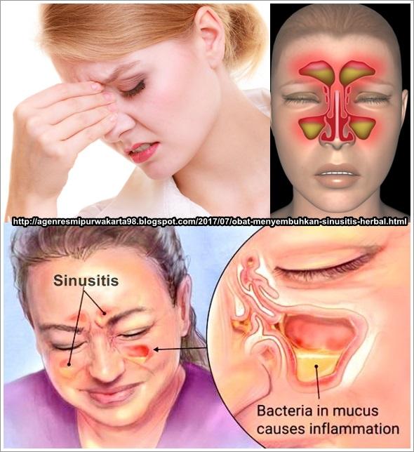 Obat Menyembuhkan Sinusitis Herbal Terbukti Ampuh, Efektif Dan Aman