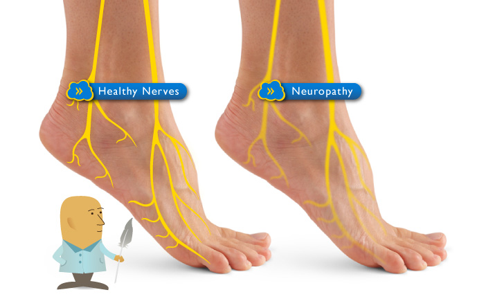 peripheral neuropathy Information about types of neuropathy like diabetic, peripheral, optic, cranial, alcoholic, etc symptoms like loss of sensation in the affected areas, and treatment medications.