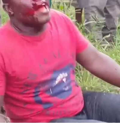 Karma! Robbery Victim Knocks Down Robber With His Car After He Tries to Make Away on a Bike (Photos)