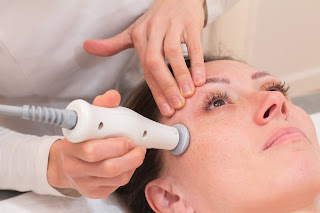 radiofrecuecia facial