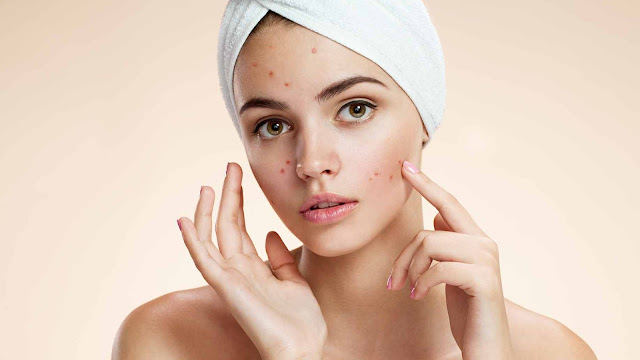 Top 10 Best Foods To Fight Acne