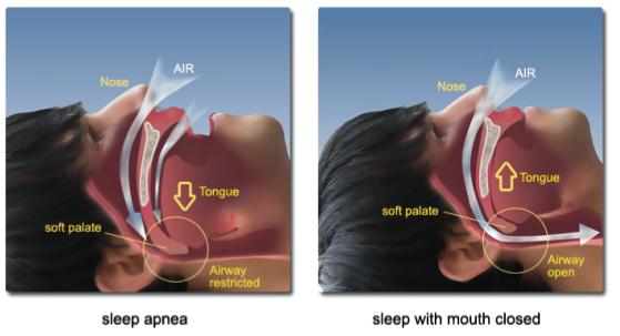 Sintomi dell'apnea notturna